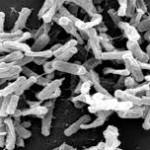 Dezinfectie Bacilul botulinic microscop